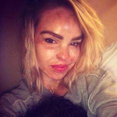 La femme de la semaine : Katie Piper, défigurée à l'acide elle s'indigne contre les make-up d'Halloween