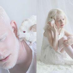 Cette photographe montre la beauté captivante de l'albinisme (photos)