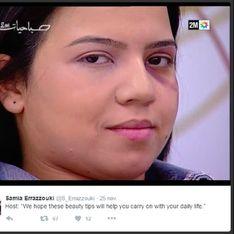 Un tuto maquillage spécial femmes battues au Maroc indigne les internautes (Vidéo)