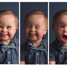 Una agencia de modelos rechaza a un niño por tener síndrome de Down