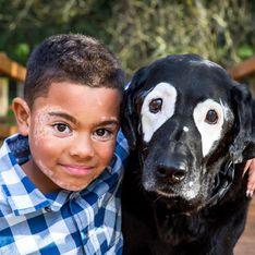 Er schämt sich für sein ungewöhnliches Aussehen - bis er Hund Rowdy kennenlernt