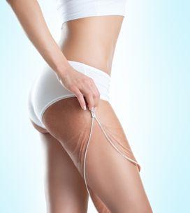 Smagliature: rosse o bianche, ecco cause e rimedi per eliminarle da seno, pancia e glutei