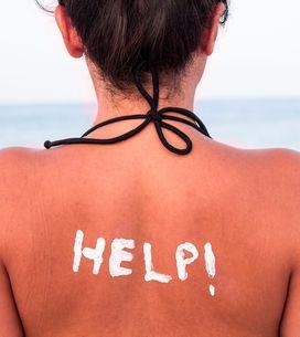 Foi à praia e ficou igual a um ~camarão~ ? Calma que a gente te ajuda!