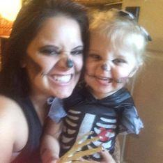 Amputée d'un bras, cette petite fille de 3 ans embrasse son handicap grâce à la fête d'Halloween (photos)