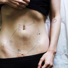 Atteinte d'endométriose, elle témoigne en photos de cette maladie qui touche 1 femme sur 10