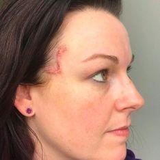 Une tache sur son visage se transforme en cancer de la peau (Photos)