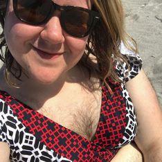Atteinte de pilosité excessive, elle retrouve confiance en arrêtant de se raser (Photos)