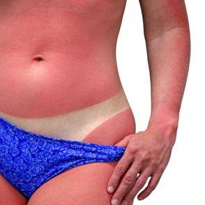 Sunburn treatment | After sun skin care