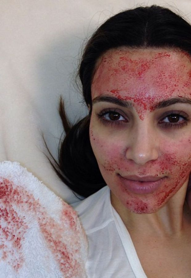 PRP injections: The Kim Kardashian blood facial
