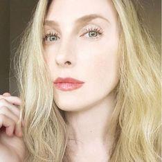 Taylor Muhl, la modelo que tiene el vientre de dos colores