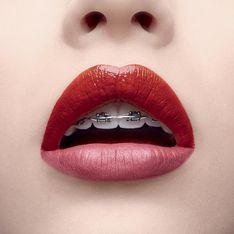 Avec cette campagne, YSL rendrait presque stylés les appareils dentaires