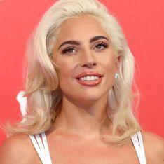 Lady Gaga dévoile ses vergetures à la poitrine, et ça fait du bien (Photos)