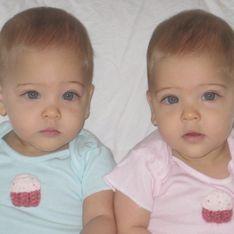 Bébés, elles étaient les jumelles les plus belles du monde, regardez à quoi elles ressemblent aujourd'hui