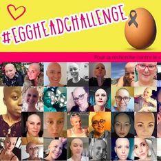 #EggHeadChallenge : atteintes d'un cancer, elles dévoilent leur crâne d'œuf pour la bonne cause (photos)