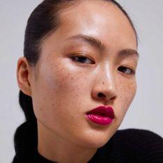 Voici pourquoi les taches de rousseur de ce mannequin Zara créent le scandale