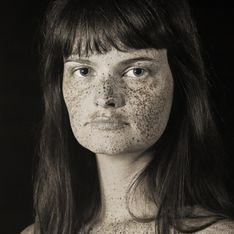 Un photographe montre l'impact inquiétant du soleil sur notre peau (Photos)