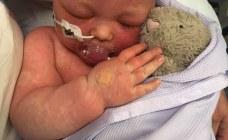 Elle publie les photos choquantes de son bébé pour alerter sur la non-vaccination