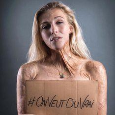 Sur Instagram, le hashtag #Onveutduvrai mène une guerre contre la dictature du beau