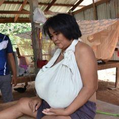 Atteinte d'une maladie rare, cette femme voit sa poitrine augmenter de volume depuis 9 mois