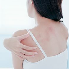 ¿Tienes picor, enrojecimiento o ronchas en la piel? Podría no ser alergia