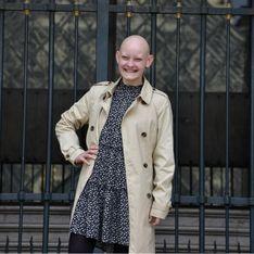 Je suis atteinte d'alopécie, et ma 'différence' est aujourd'hui ma plus grande force