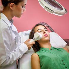 Come eliminare le cicatrici dell'acne: laser e altri tipi di trattamenti