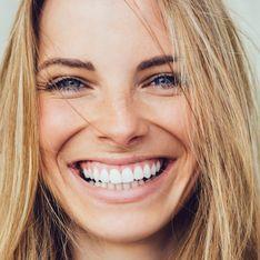 Beauty-Trend: Weiße Zähne mit Kokosöl? So geht's!