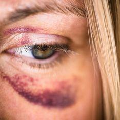 Violences conjugales : près de 45 000 appels reçus pendant le confinement