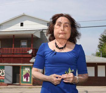 Première Américaine à avoir reçu une greffe du visage, Connie Culp est décédée