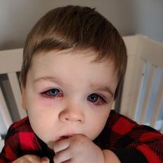 Elle alerte sur les jouets de bain après que son fils ait failli perdre la vue