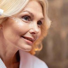 Taches brunes visage : les solutions efficaces pour s'en détacher !