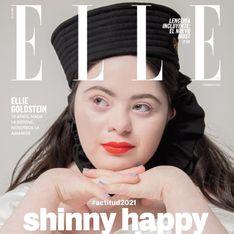 Atteinte de trisomie 21, Ellie Goldstein pose en couverture du Elle México