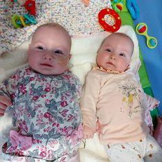 À 8 mois, ses jumelles sont atteintes d'une leucémie : cette maladie est notre 3e enfant, elle nous suivra à vie