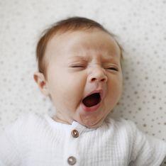 Palatoschisi neonato: come si cura questa malformazione del palato dei più piccoli?
