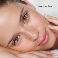 Gesund aussehende Haut: Das sind die wichtigsten Experten-Tipps