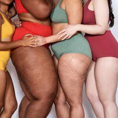 Quel appareil contre la cellulite ? Notre sélection des meilleurs modèles