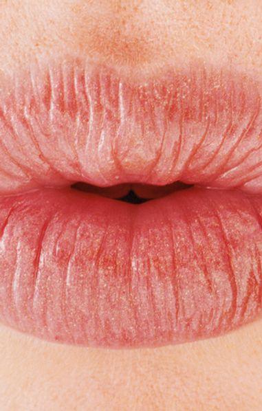 Labbra rifatte: pro e contro del trattamento volumizzante