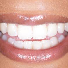 Come sbiancare i denti con il bicarbonato: uno sbiancante naturale
