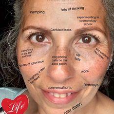 Rides, taches et autres imperfections cutanées : cette blogueuse nous rappelle leur beauté