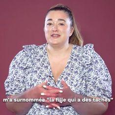 """VIDÉO - Décomplexée : Julie, """"La Fille qui a des Taches"""""""