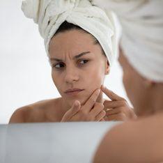 Spätakne: Ursachen und Tipps bei schlechter Haut ab 25