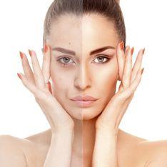 Lifting facciale: tutto quello che c'è da sapere