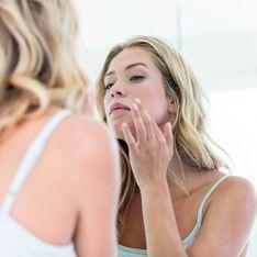Come curare l'acne: tutti i rimedi per combatterla