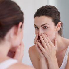 Mitesser entfernen: Die besten Tipps und Anti-Mitesser-Produkte